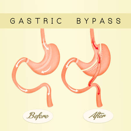 duodenum: illustration of gastric bypass