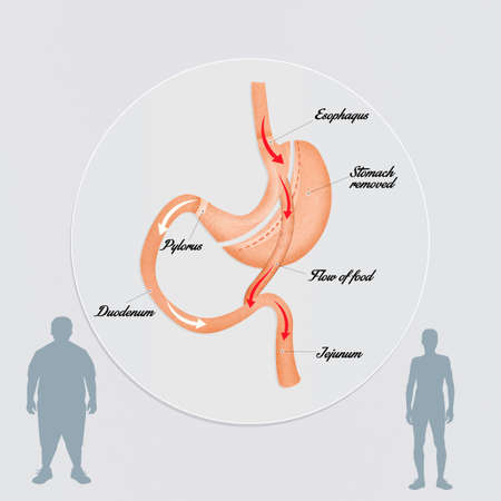 bypass: gastric bypass to reduce stomach