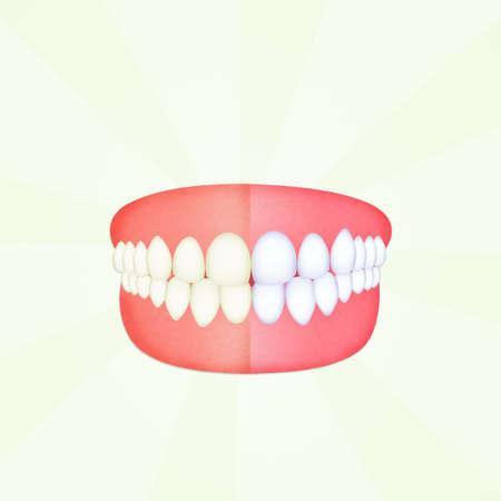 voor en na het schoonmaken van de tanden Stockfoto