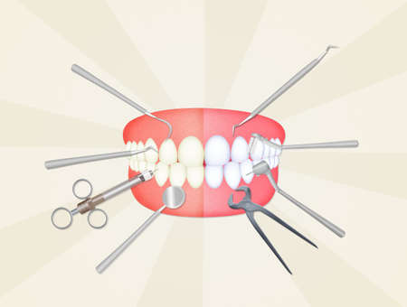mond met tandarts hulpmiddelen Stockfoto