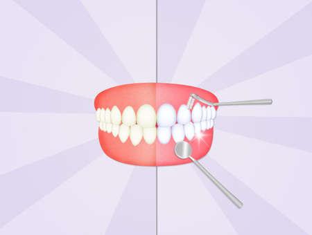 mond met schone tanden Stockfoto