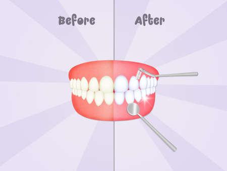 voor en na het reinigen van de tanden