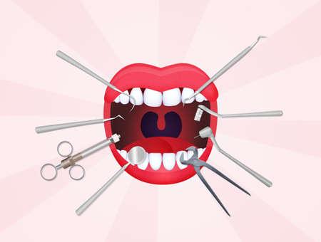mond open met tandheelkundige hulpmiddelen