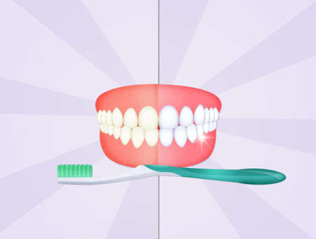 teeth cleaning Stock Photo