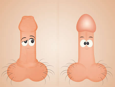 illustration of circumcision infographic vector illustration Archivio Fotografico - 107117700