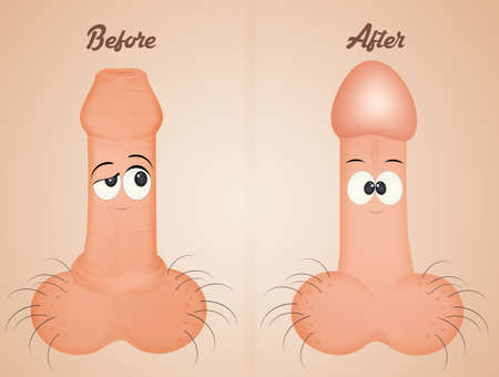 Before and after circumcision funny expression Archivio Fotografico - 107127417