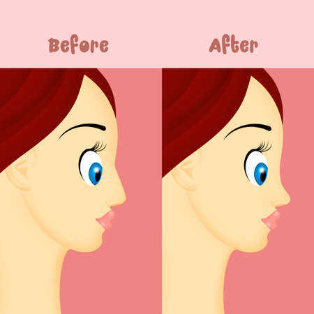 before and after rhinoplasty Archivio Fotografico - 117731443