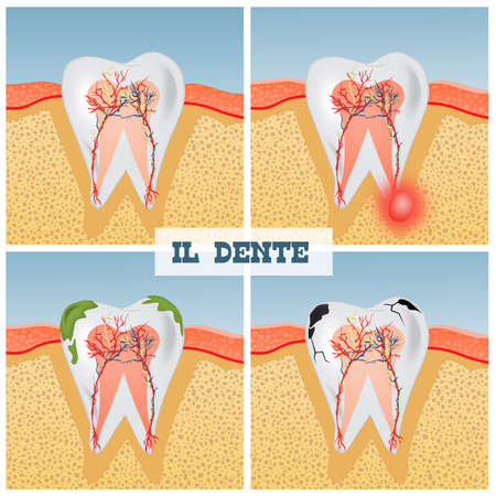 illustration of tooth anatomy Banque d'images - 117927029