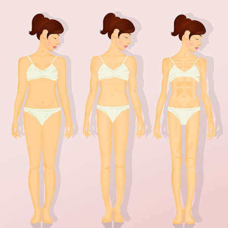 illustration of anorexia Imagens