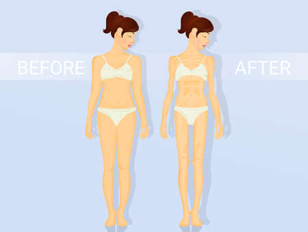 phases of anorexia and bulimia Stock Photo