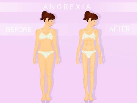 illustration of before and after anorexia Stock Photo