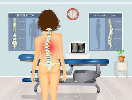 illustration of girl with scoliosis problem Stok Fotoğraf - 130518100