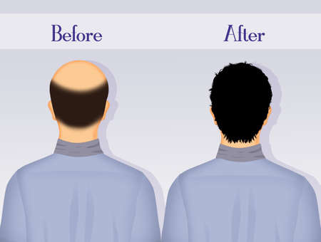 before and after hair transplantation