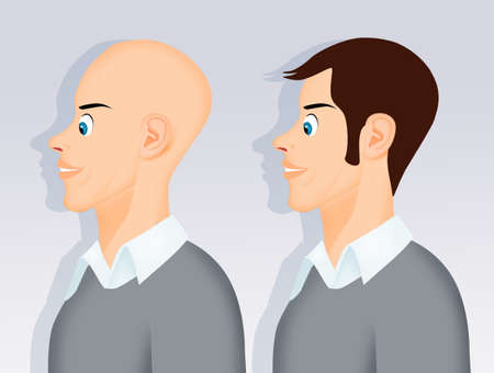 illustration of man after hair transplant 스톡 콘텐츠