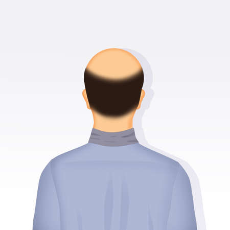 illustration of bald man