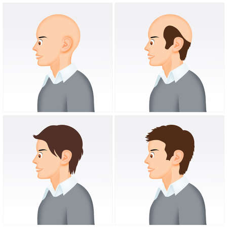 illustration of baldness