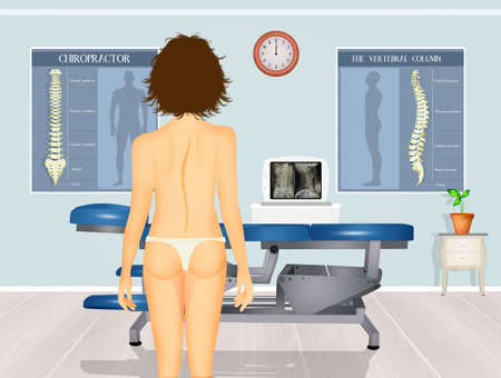 illustration of girl with scoliosis problem Zdjęcie Seryjne - 132000864