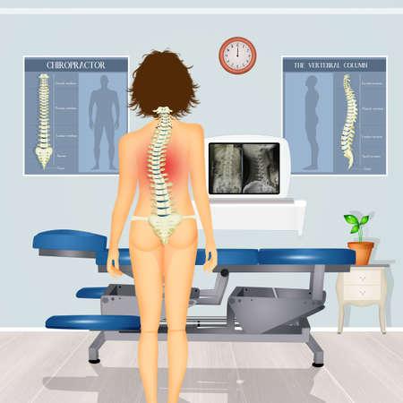 illustration of girl with scoliosis problem Zdjęcie Seryjne