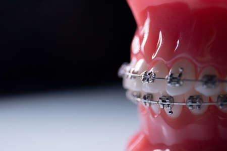 Close-up of teeth with metal braces. The jaw with braces turns on the surface Zdjęcie Seryjne