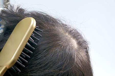 50s: 50s men brushing the scalp Stock Photo