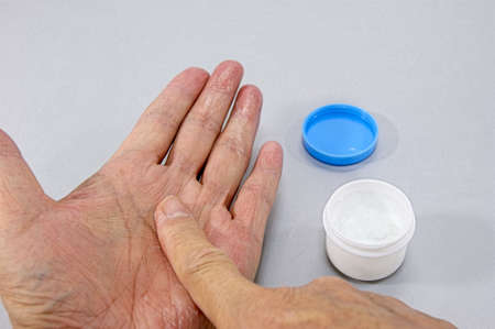 the topical: Like a painting a topical cream for roughed his hands. Stock Photo