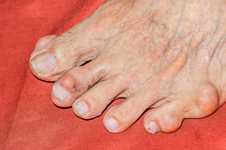 Severe gout in men suffering from joint pain, bone pain, gout, rheumatoid symptoms 写真素材