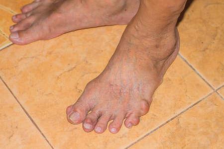Severe gout in men suffering from joint pain, bone pain, gout, rheumatoid symptoms, radioactive sickness 写真素材