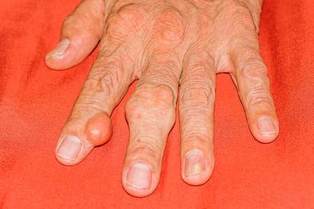 Goutte sévère chez les hommes souffrant de douleurs articulaires, douleurs osseuses, goutte, symptômes rhumatoïdes, maladie radioactive Banque d'images