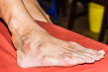 Severe gout in men suffering from joint pain, bone pain, gout, rheumatoid symptoms, radioactive sickness,