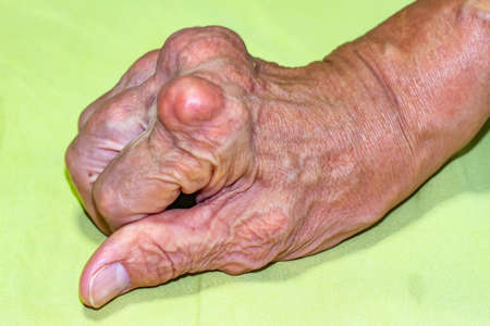 Severe gout in men suffering from joint pain, bone pain, gout, rheumatoid symptoms, radioactive sickness, ill man concept of male osteoporosis, injured bone, injury, pain, arthritis,arm, foot, knee