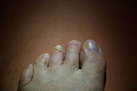 A toe nail barely hangs on to the base of the toe - ouch