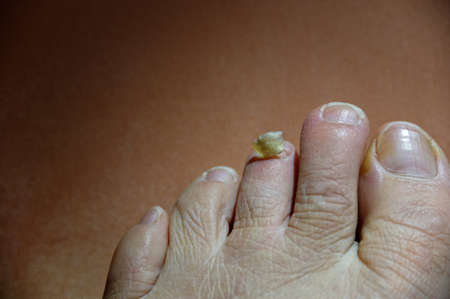 Attention is need for a poor toe that has lost its toenail 스톡 콘텐츠