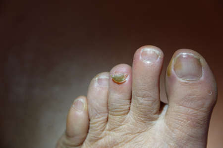A toe has nearly lost its toenail, it is just hanging at the base