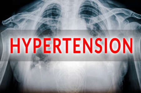 diastolic: Hypertension xray Stock Photo