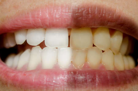 bleaching: part of the face close-up, toothy smile,concept before and after bleaching