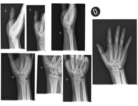 radiological: Real X-rays of the Hand and wrist   broken wrist  Stock Photo