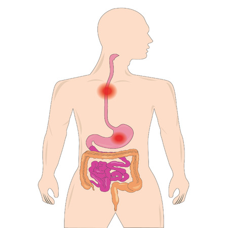 descending colon: Gastro-Esophageal Reflux Disease
