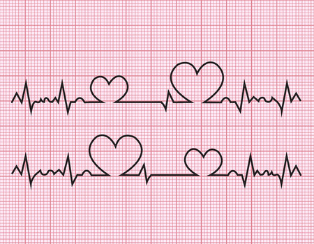 patient chart: heart beats cardiogram  on pink background Illustration