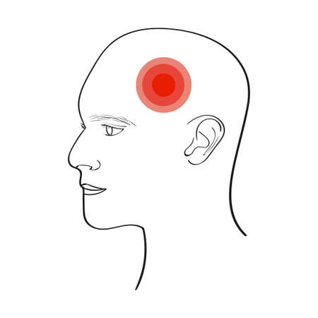 concussion: Headache vector illustration isolated on white.