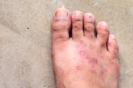 closeup skin athlete's foot psoriasis fungus, hong kong foot, foot disease Standard-Bild