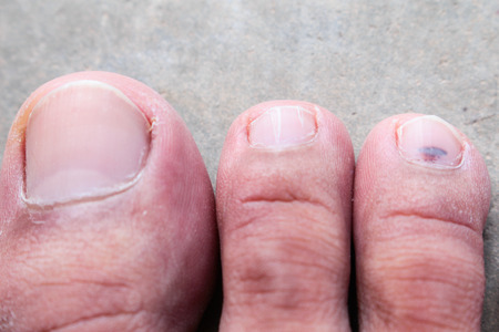 toenail fungus: closeup skin athlete's foot psoriasis fungus, hong kong foot, foot disease