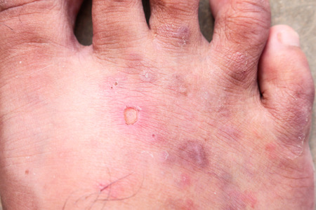 closeup skin athlete's foot psoriasis fungus, hong kong foot, foot disease photo
