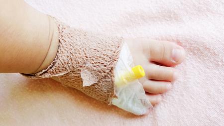 close-up foot of child patient with saline solution drip Banco de Imagens