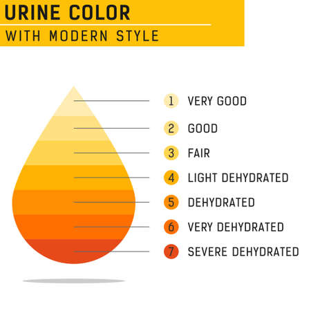 Urine color vector illustration isolated on white background. Vector for all project, web design and other. Equipped with complete information and easy to understand. Flat design.