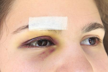 mujer golpeada: Mujer con negro después de un accidente o herida