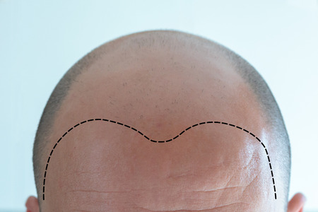View of bald man's head with hair loss