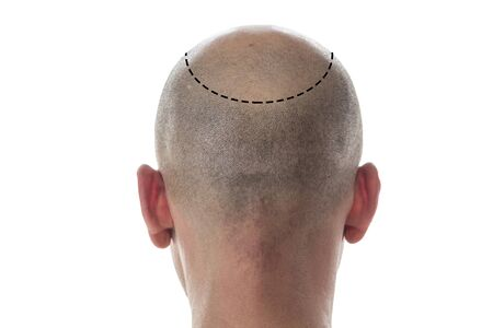 Bald man back view, head with hair loss and discontinuous line