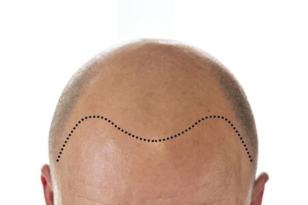 탈모와 후퇴하는 선이 있는 대머리 남자의 머리 보기
