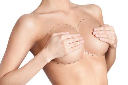 tetas: Correcci�n de las gl�ndulas mamarias, fondo blanco, blanco Foto de archivo