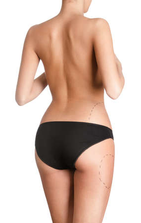 liposuction: Planning plastic surgery, isolated, white background Stock Photo